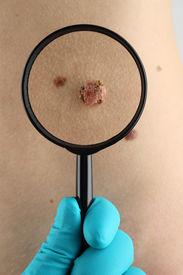 image of birthmark  - Birthmark - JPG