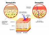 stock photo of fat cell  - Skin showing changes due to dermatitis - JPG