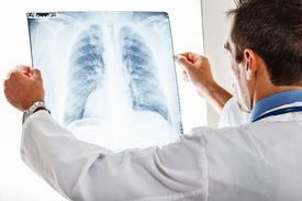 image of pneumonia  - Doctor examining a lung radiography - JPG