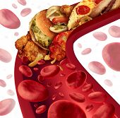 image of cardiology  - Cholesterol blocked artery medical concept with a human blood vessel that is clogged by unhealthy food as hamburgers and fried foods as a health risk metaphor for dieting and nutrition problems as eating fat - JPG