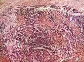 stock photo of histology  - Liver cancer of a human photomicrograph panorama as seen under the microscope 50x zoom - JPG