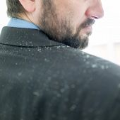 picture of scabs  - Business man having man dandruff in the hair - JPG