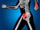 foto of osteoporosis  - Conceptual 3D human man anatomy or health design - JPG