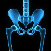 foto of hip replacement  - The hip region is located lateral to the gluteal region  inferior to the iliac crest - JPG