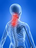 Neck Inflammation