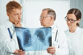 image of tuberculosis  - Professor older man doctor and young doctors examine x - JPG