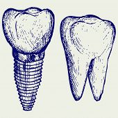 picture of molar  - Tooth implant and molar - JPG