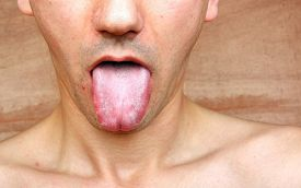 foto of syphilis  - Disease infection tongue throat a young man - JPG