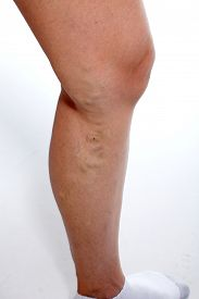 stock photo of varicose  - Woman with Varicose veins - JPG