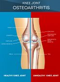 pic of joint  - Osteoarthritis and normal knee joint colorful design healthy half of the joint on a blue background and unhealthy on a red - JPG