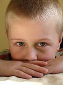 stock photo of young boy  - injured boy with bruise - JPG