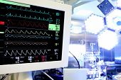 stock photo of cpr  - Medical monitor in the operating room  - JPG