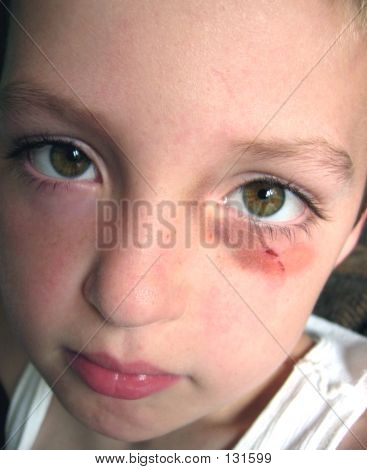Picture or Photo of Little boy with a bruise around his eye.