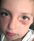 picture of black eyes  - little boy with a bruise around his eye - JPG