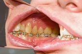 Dental Braces On Teeth - Orthodontic Treatment