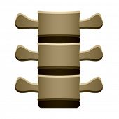 foto of spinal disks  - vector human spine vertebrae front view - JPG