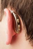 picture of aerophone  - Hearing aid on the man - JPG