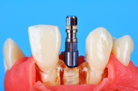 foto of overbite  - Dental implant implanted in jaw bone on blue background - JPG