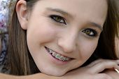 foto of braces  - A pretty young teenager closeup with braces on her teeth - JPG