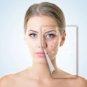 stock photo of purity  - portrait of beautiful woman with problem and clean skin - JPG