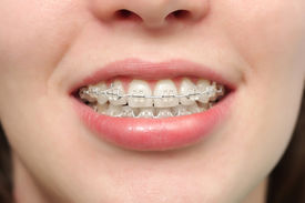 stock photo of overbite  - The young girl smiles with braces system. ** Note: Shallow depth of field - JPG