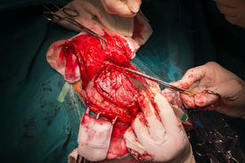 picture of frontal lobe  - Craniectomy In Case Of Brain Tumor At Frontal Lobe - JPG