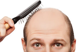 picture of bald head  - Human alopecia or hair loss  - JPG