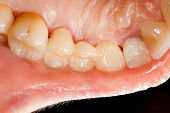 image of emax  - Highly aesthetic emax pressed ceramic bridge  - JPG