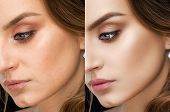 Close Up Of Result Of Retouch Photography Beautiful Brunette Woman. Collage With After And Before. P poster