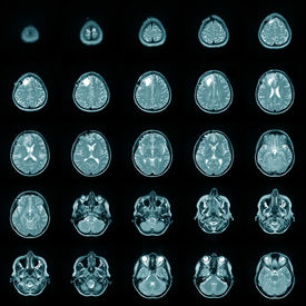 foto of cat-scan  - Magnetic risonance image MRI of a human brain - JPG