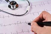 Human Scrutinize A Electrocardiogram On Ekg Graph Paper, Stethoscope And Pen, Close-up. poster