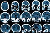 pic of frontal lobe  - MRI scan of the human brain  - JPG