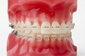 picture of overbite  - braces model - JPG