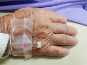 Patient Asian Elder Women 80s With Saline Intravenous At C-line Or A-line On A Elderly Patient Hand  poster
