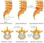 stock photo of spinal-column  - Spine Fracture - JPG