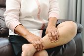 Leg Cramp, Senior Woman Suffering From Leg Cramp Pain At Home, Health Problem Concept poster