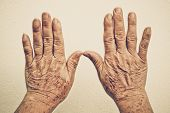 stock photo of 70-year-old  - hands of old female full of freckles and wrinkles  - JPG