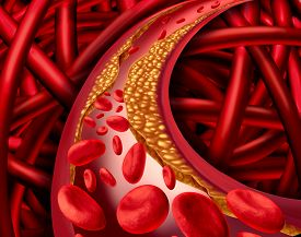 picture of cardiovascular  - Artery problem with clogged arteries and atherosclerosis disease medical concept with a three dimensional human cardiovascular system with blood cells that blocked by plaque buildup of cholesterol as a symbol of vascular diseases - JPG