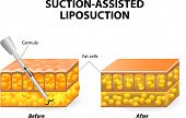 image of body fat  - Mechanism of liposuction - JPG