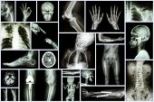 foto of orthopedic surgery  - Collection X - JPG