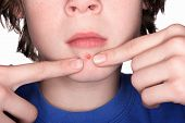 picture of pus  - An adolescent boy pinching a pimple on his chin - JPG