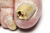 stock photo of dermatophyte  - Fungus Infection on Nails of Man - JPG