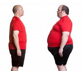 stock photo of bald man  - Before and after pictures of man with 16 months nutrition and exercise changes and losing 180 lbs - JPG