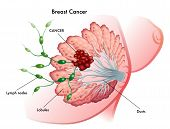 foto of nipple  - medical illustration of the development of breast cancer - JPG