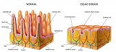 picture of modification  - medical illustration of the modification of the intestinal mucosa in celiac subject - JPG