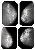 foto of mammary  - mammography collection - JPG