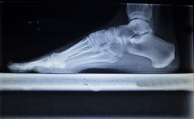 image of cat-scan  - X - JPG