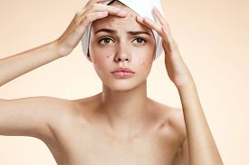 stock photo of ugly  - photos of ugly problem skin girl on beige background - JPG