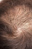 stock photo of hairline  - focus lose one - JPG