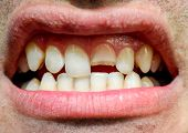 Broken Tooth. Broken Upper Incisor In A Man Mouth. Man Shows Oral Cavity To The Dentist. Treatment O poster